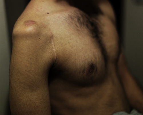 Scars of a gunshot wound of a member of the Al-Farouk brigade (FSA). Healing process : 9 months.